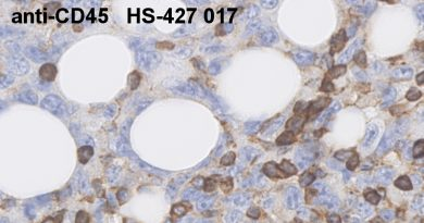 anti-mouse CD45 antibody monoclonal rat purified