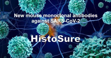 COVID-19 antibodies by HistoSure