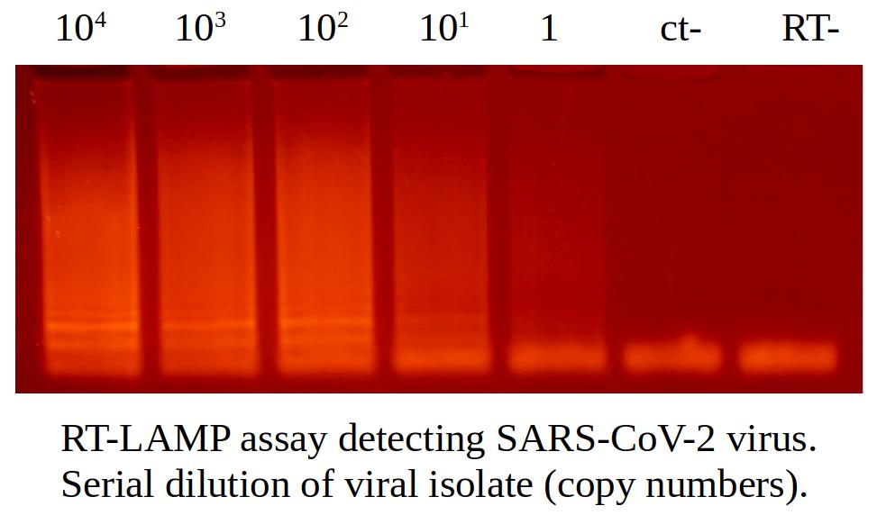RT-LAMP assay detecting sars-cov-2